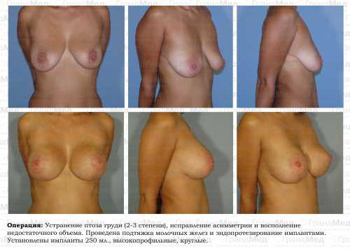 5 способов увеличить грудь без операций