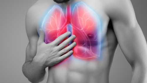 Пневмония у взрослых: симптомы, причины, это