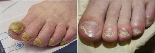 Грибок ногтей на ногах: как диагностировать и чем